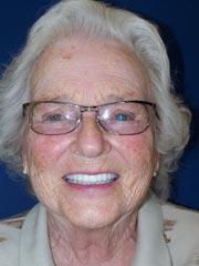 Margaret - After