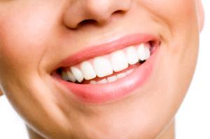 teeth whitening Trinity FL