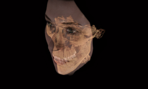 Sample image from a GALILEOS® 3D X-Ray showing a patient's face and jaw.