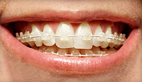 clear braces for adults with a Palm Harbor dentist East Lake